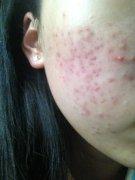 导致青春痘的原因是什么